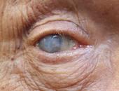 سلامة عيونك.. كل ما تريد معرفته عن إصابة العين بالمياه البيضاء