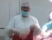 فريق طبى ينجح بإجراء جراحة نادرة لقاولون متضخم بمستشفى الإسماعيلية العام