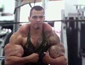 بالفيديو والصور.. شاب برازيلى يحقن ذراعيه بالزيت لبناء عضلات ضخمة