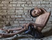 """ديلى ميل: جراحة نادرة تنقذ طفلا هنديا يعانى من """"رأس مقلوبة"""""""