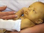 منظمة الصحة: على المسافرين إلى أنجولا التطعيم ضد الحمى الصفراء