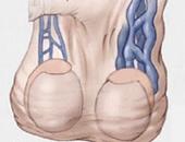 تعرف على أهمية العلاج الدوائى بعد جراحة دوالى الخصية