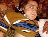 طفل يحتاج لإجراء جراحه فتاء بالصرة ووالده يستغيث بالمسئولين لمساعدته