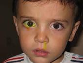 أعراض انسداد القناة الدمعية عند طفلك.. تعرف عليها