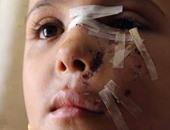 """بالفيديو.. الطفلة """"آلاء"""" ذهبت لتصلى التراويح بأكتوبر فهاجمها كلبان شوها وجهها"""