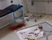 صحافة المواطن: دماء ملطخة ومخلفات طبية تزين استقبال مستشفى ميت غمر بالدقهلية
