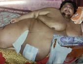قارئ يطالب بالتدخل لإنقاذ مريض وزنه 300 كيلوجرام من المرض