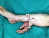 بالصور..أطباء صينيون يرفقون يد عامل بساقه شهرا لإبقائها على قيد الحياة