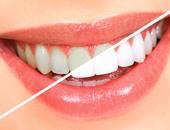 خلى ابتسامتك تنور.. وصفة طبيعية لتبييض الأسنان والنتيجة مضمونة
