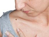 انتبه.. كثرة الشامات علامة على ارتفاع خطر الإصابة بسرطان الجلد