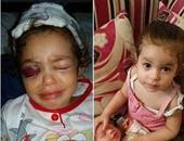 """""""صحافة المواطن"""": قارئ يطالب بعلاج طفلة أصيبت برصاصة أدت لكسر جمجمتها"""