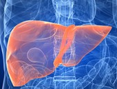 أستاذ جراحة كبد: فرصة ارتجاع الأورام بعد زراعة الكبد 90 %