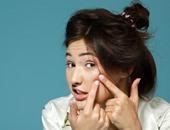 ودعى بثور الوجه المزعجة للأبد.. 5 حلول منزلية فعالة وقوية