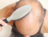 لعلاج الصلع.. تعرف على شروط زراعة الشعر وإجراءات ما بعد الجراحة