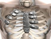 6 أسباب وراء الألم فى جانب واحد من الصدر.. تعرف عليها