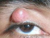 كيف يتكون الكيس الدهنى على العين وطرق التخلص منه