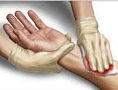 تعرف على أهم طرق الإسعافات الأولية للتعامل مع الجروح المزيفة