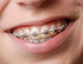 تعرف على عقوبة صاحب شركة ضبط بحوزته 8800 فص تقويم أسنان منتهى الصلاحية