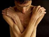 باحثون أستراليون: المراهقون عرضة للإصابة بفقدان الشهية العصبى