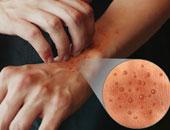 أمراض جلدية تصيبك بسبب البرد أبرزها الارتكاريا وظاهرة رينود