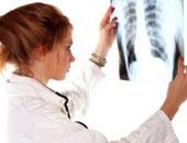 دراسة تحذر: ارتفاع معدلات الوفيات بسرطان الرئة بين النساء 50% بحلول عام 2030