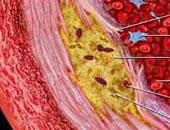 التمرينات اليومية تخفف ألم العضلات لمرضى الكوليسترول.. اعرف التفاصيل