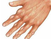 أعراض مرض النقرس والطعام المناسب للمريض
