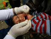 لتفادى إصابة طفلك بالحصبة اعرفى أعراضها وعلاجها وتطعيمها