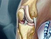 """ما لا تعرفه عن مرض """"فيبروميلجيا"""".. يصيب العظام ويسبب الصداع النصفى"""