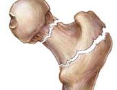 طبيب عظام يوضح أعراض وأسباب هشاشة العظام.. ويقدم نصائح للوقاية منها