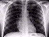 دراسة للنساء: يجب فحص الثدى بالأشعة السينية بعمر الـ40 لتجنب السرطان