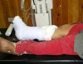 سوريا: مقتل طفلين وإصابة 10 آخرين في انفجار لغم بريف درعا
