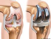 تعرف على أسباب التهاب الأوتار وأبرز طرق علاجه