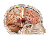 اعراض الإصابة بأورام المخ أبرزها التغيرات فى الذاكرة والتفكير