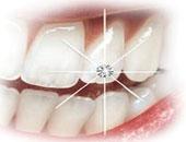 دراسة أمريكية: اللعاب يحمى الأسنان من التسوس