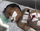 """محكمة بريطانية تسمح لأم بقتل طفلتها لـ""""رحمتها"""" من عذاب المرض"""
