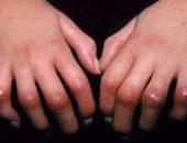 10 علامات فى جسمك تكشف حقيقة مرضك.. لو رجلك باردة على طول فتش عن أمراض القلب.. واحمرار الجلد واصفرار العين إنذار بمشكلة فى الكبد.. الشعر الأبيض فى سن 30 علامة لمرض السكر.. والوحمات إشارة لسرطان الجلد