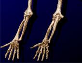 خطوات العناية بصحة العظام