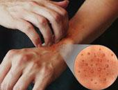 الجلد فاترينة الجسم.. 5علامات تشخص الأمراض قبل ظهورها.. بقع الرقبة والذراعين مؤشر لمرض السكر.. والطفح الجلدى والزوائد تحذير من السرطان.. واللون الأصفر دليل الفشل الكبدى