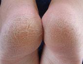 تحذير للفتيات: استخدام الأمواس لعلاج تشققات القدمين يعرضها للبتر