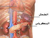 5 علاجات طبيعية للبنكرياس.. أبرزها الثوم والبروكلى