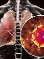 الصحة السعودية: لم يتم رصد إصابات بفيروس كورونا الجديد.. وجار فحص حالتين