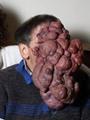 أغرب الأورام فى العالم