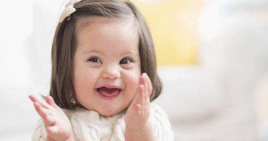 ما أسباب ولادة أطفال مصابين بمتلازمة داون اليوم السابع