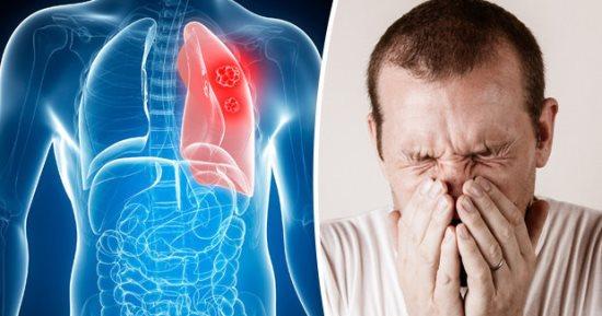 اعراض سرطان الرئة المبكرة منها سعال وضيق تنفس اليوم السابع